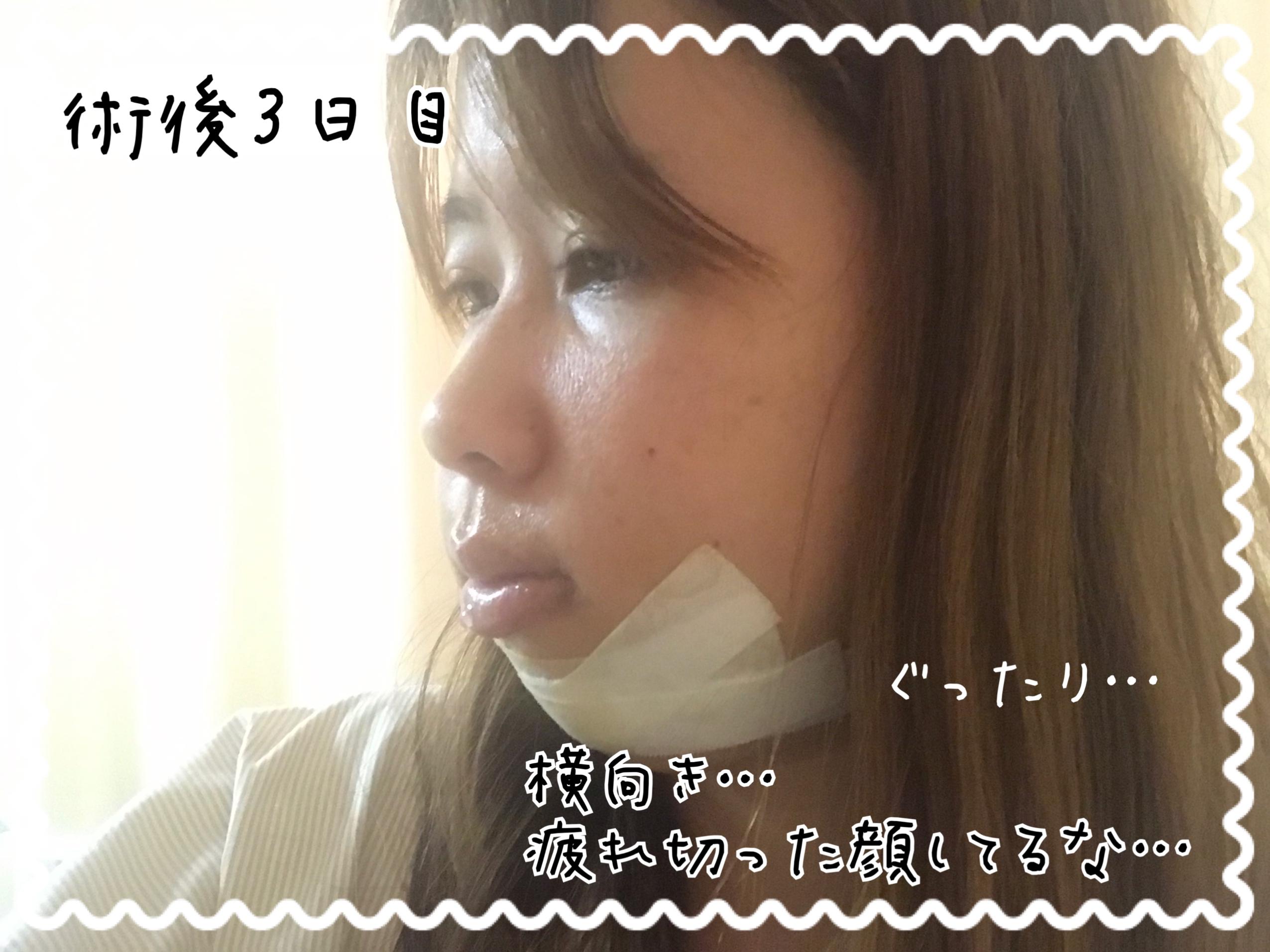 顎変形症手術 顔の腫れ