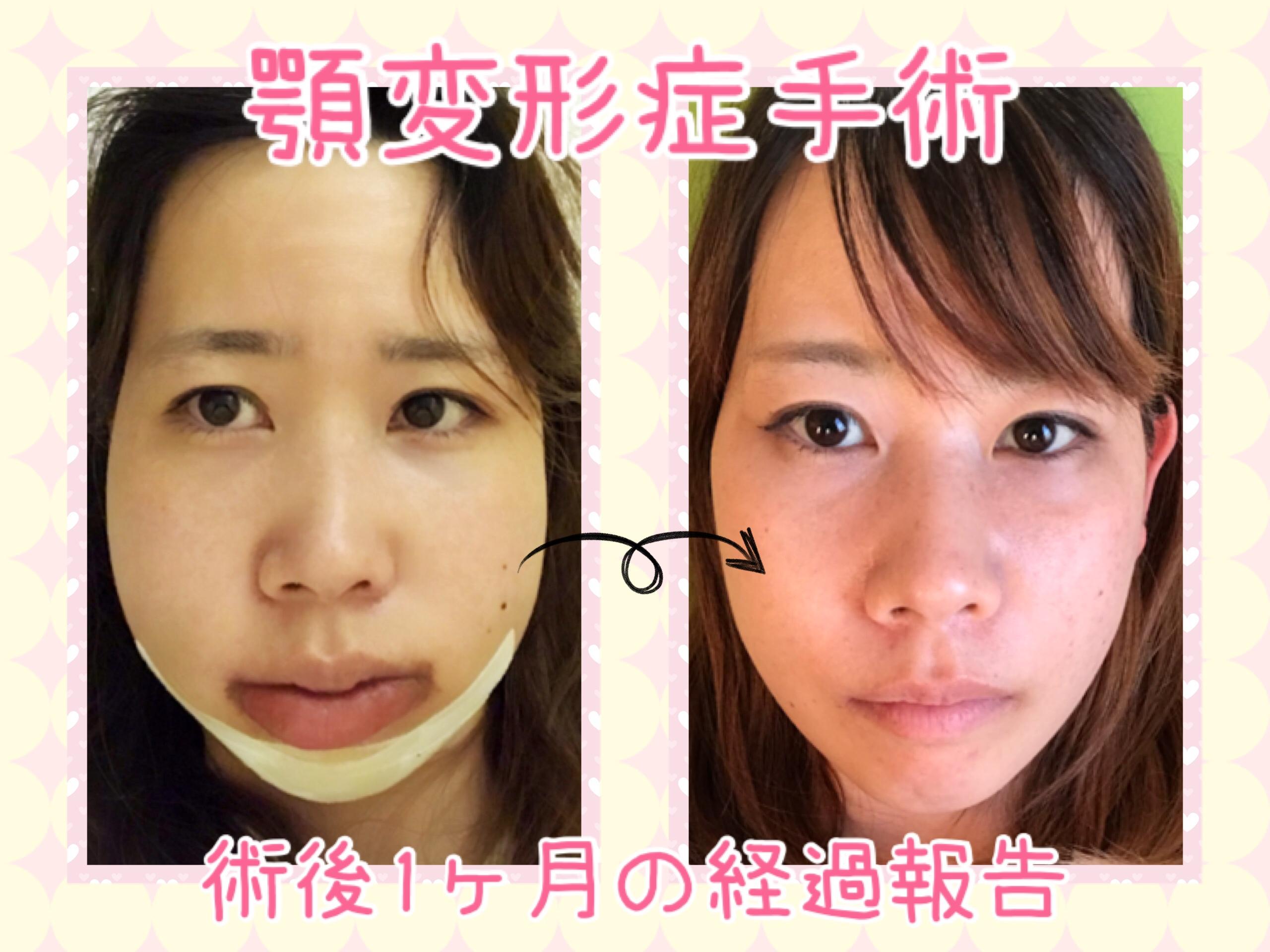 顎変形症手術 1ヶ月