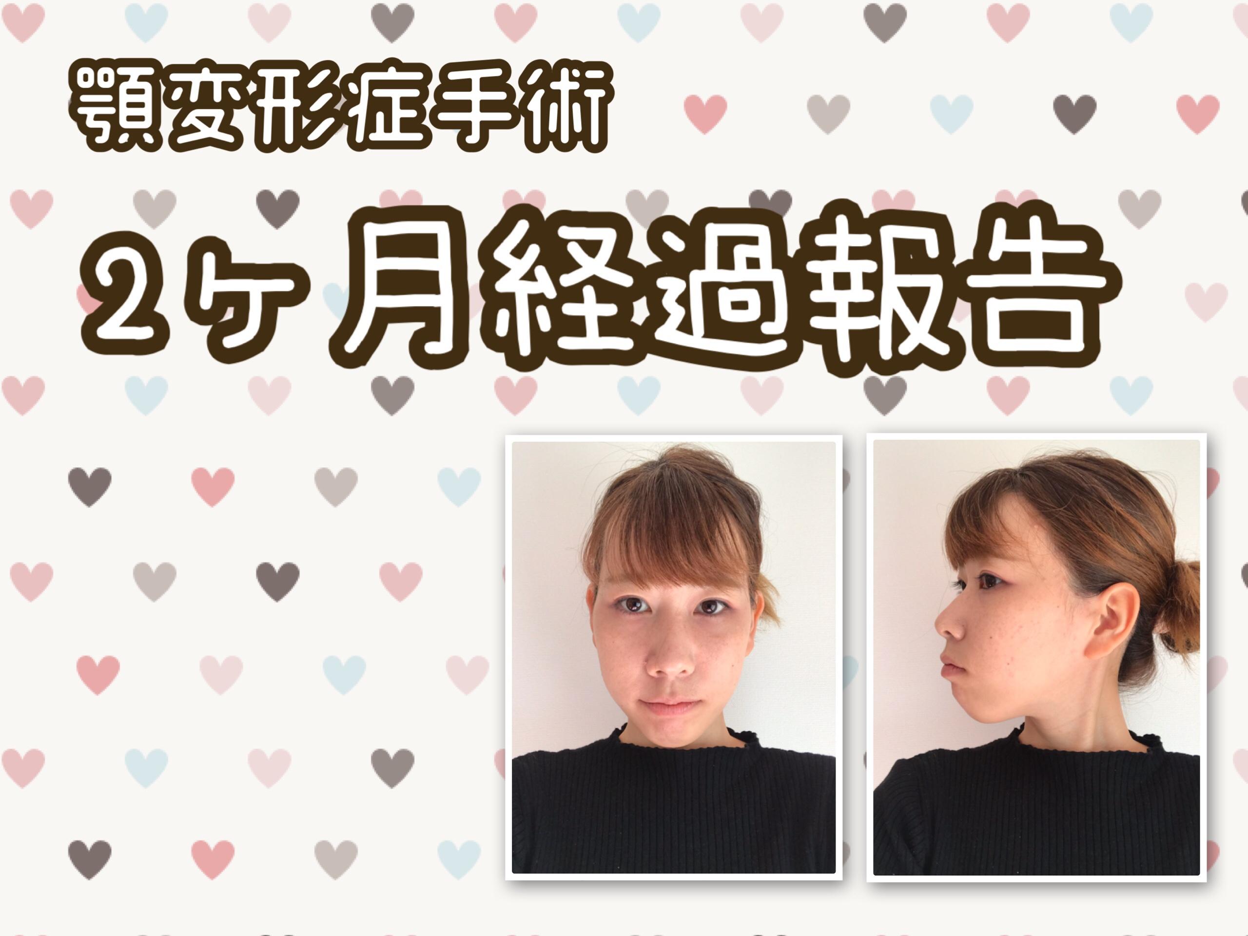 顎変形症手術体験談