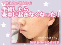 顎変形症手術