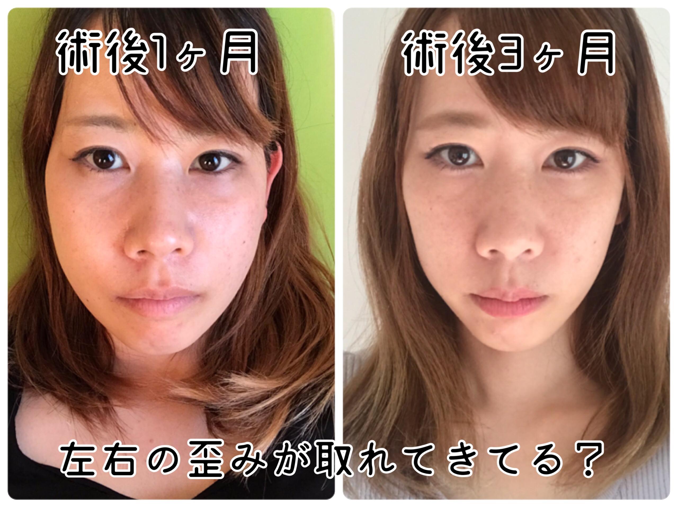 顎変形症手術 3か月