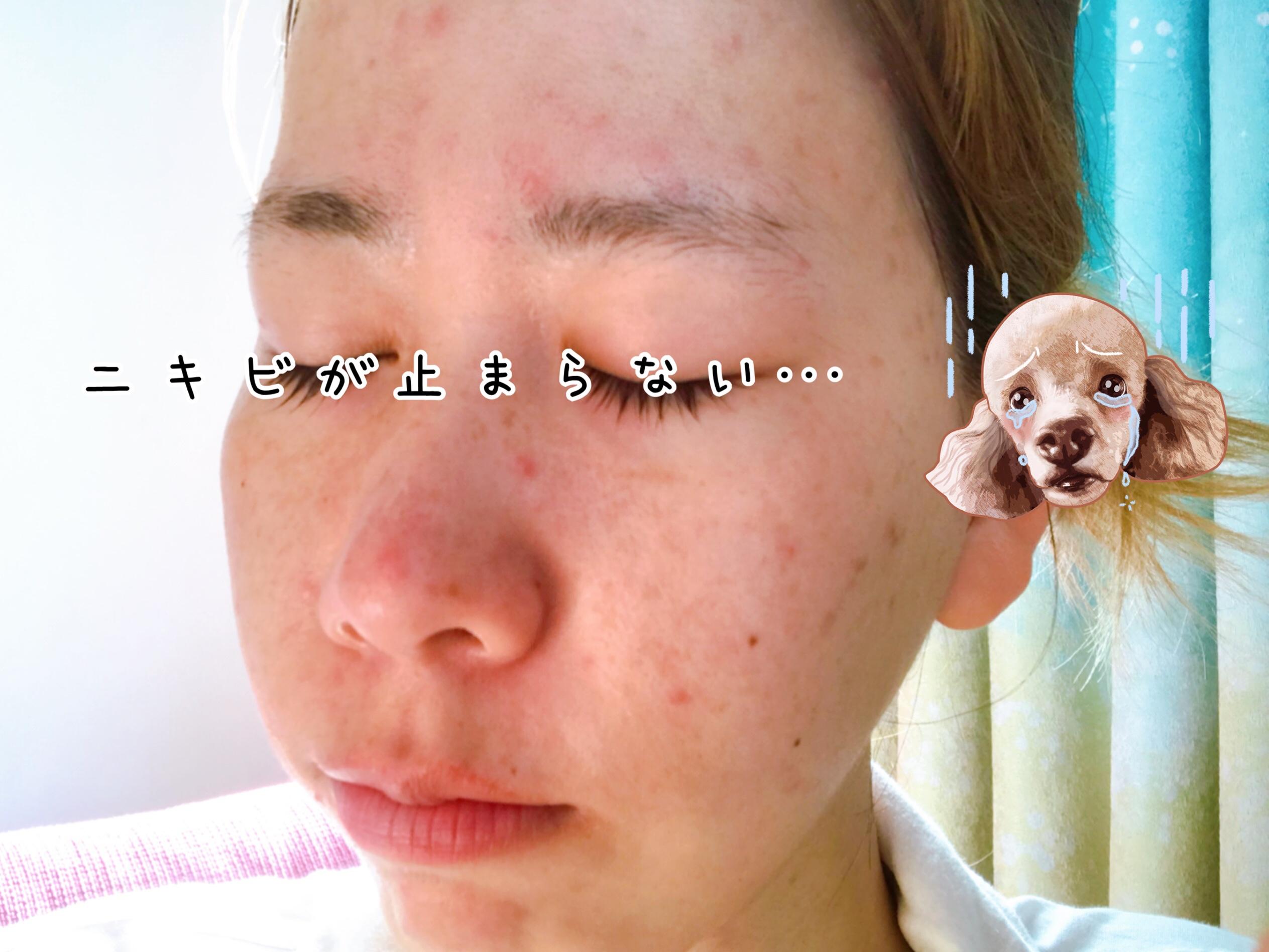 顎変形症手術 ニキビ