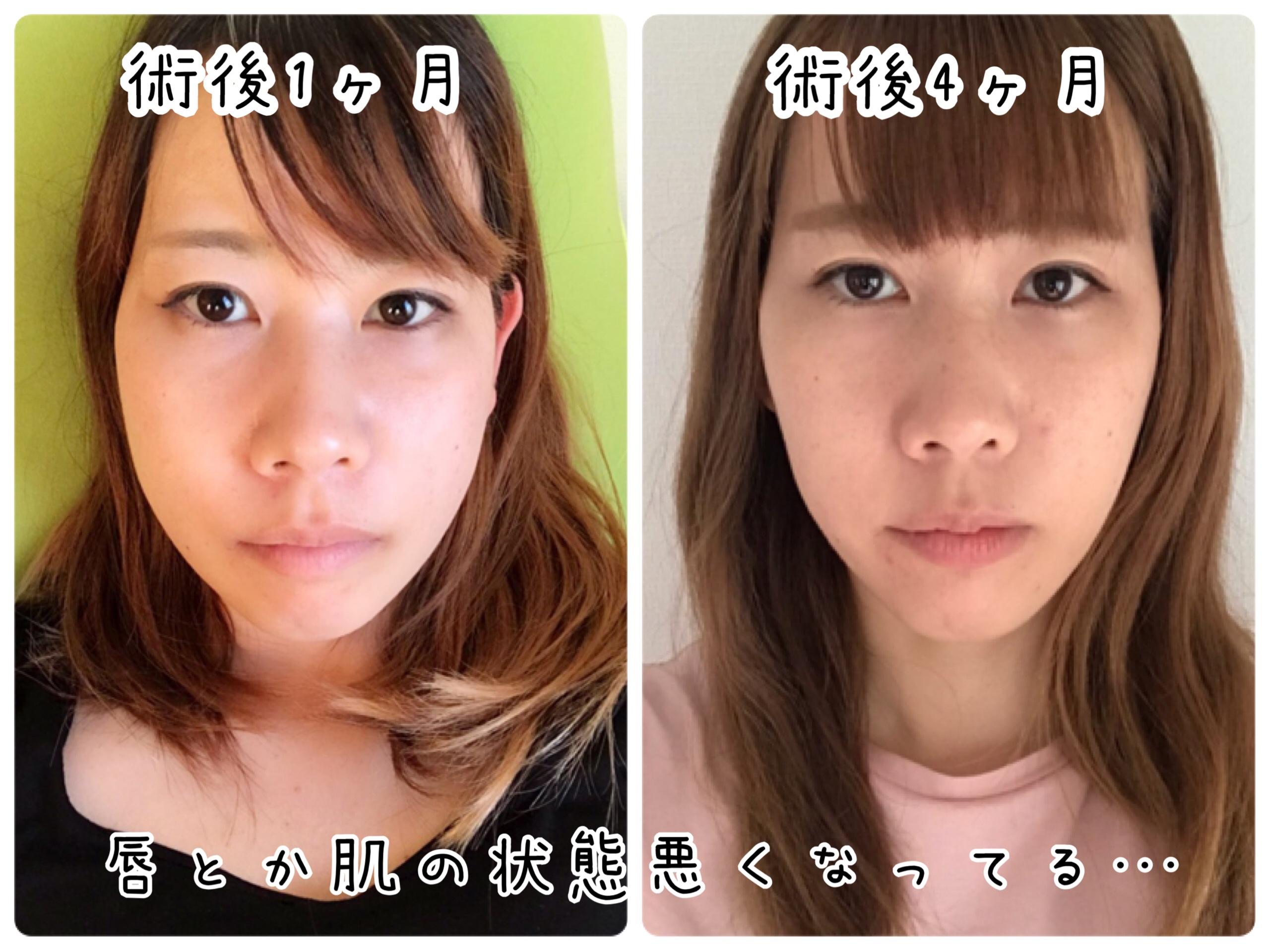 顎変形症手術 体験談
