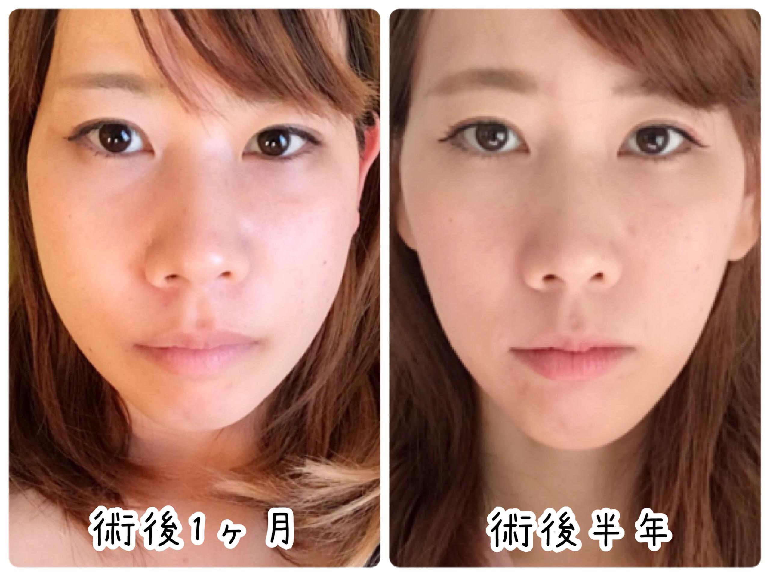 顎変形症手術 半年後