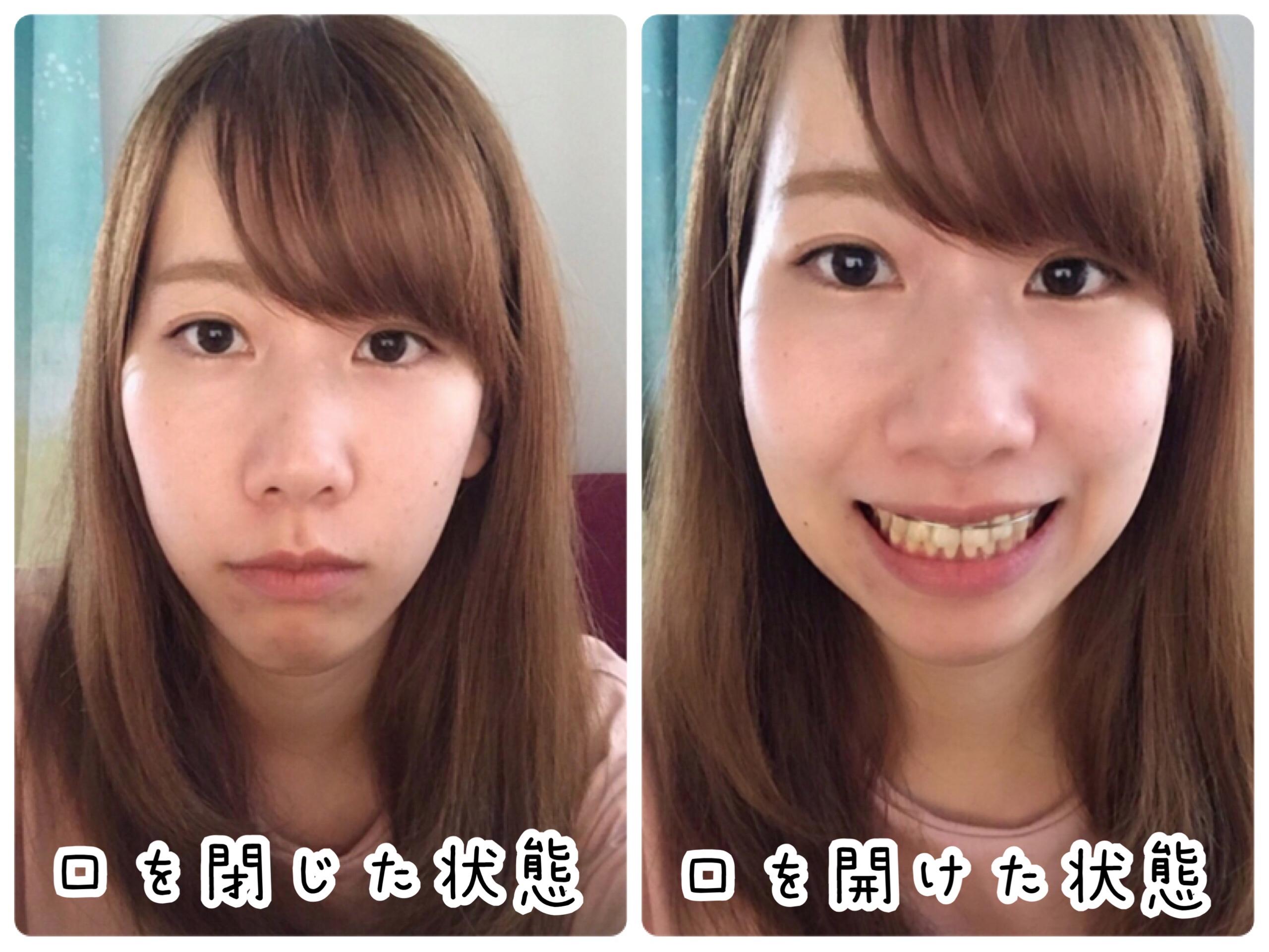 ブラケットオフ 顔の変化